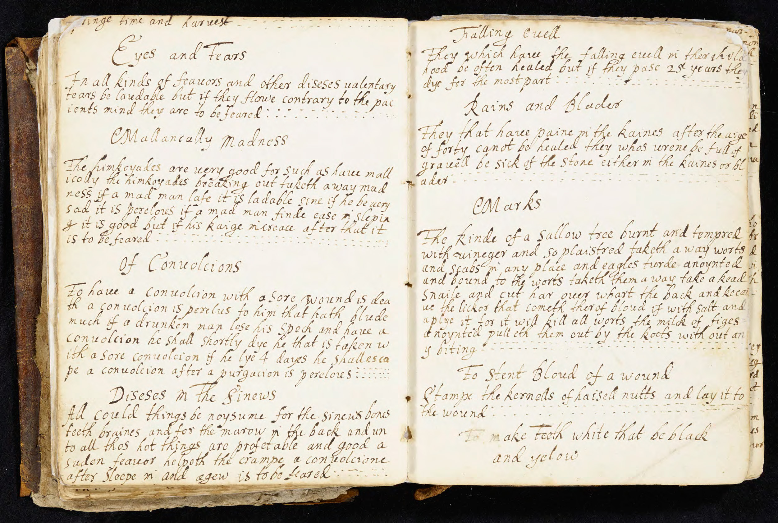 "Image of remedy using hazelnuts to stanch bleeding in Elizabeth Dyke, her Booke of Recaits 1668."" (MS D157)"